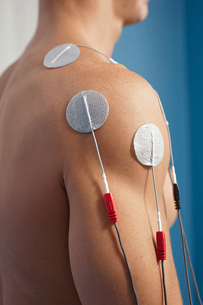 electrical stimulation coast 1 Electrical Stimulation