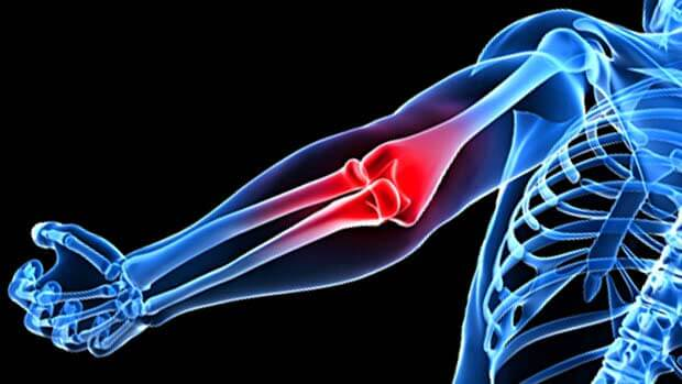 Elbow, Wrist, and Hand Injuries in Golf