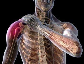 Shoulder Injuries in Golf